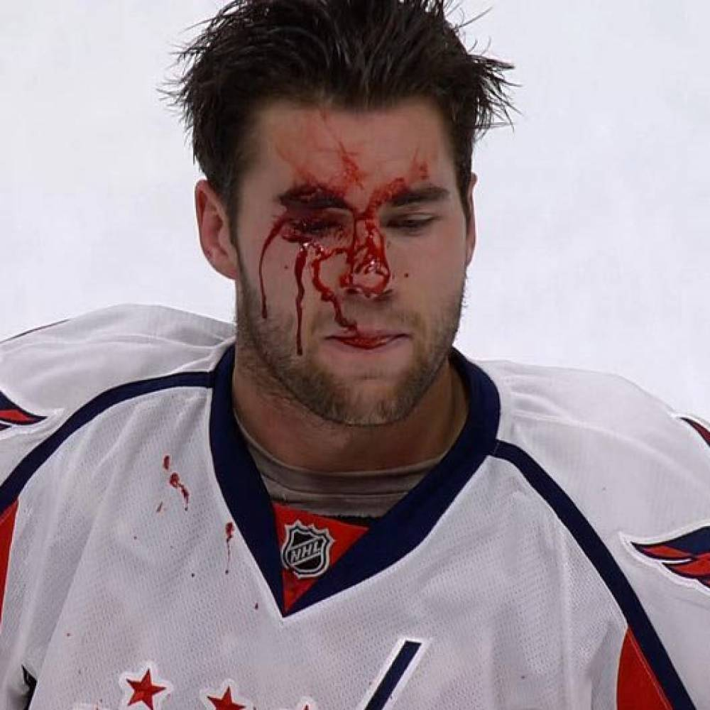 tom-wilson-bloody-face-1