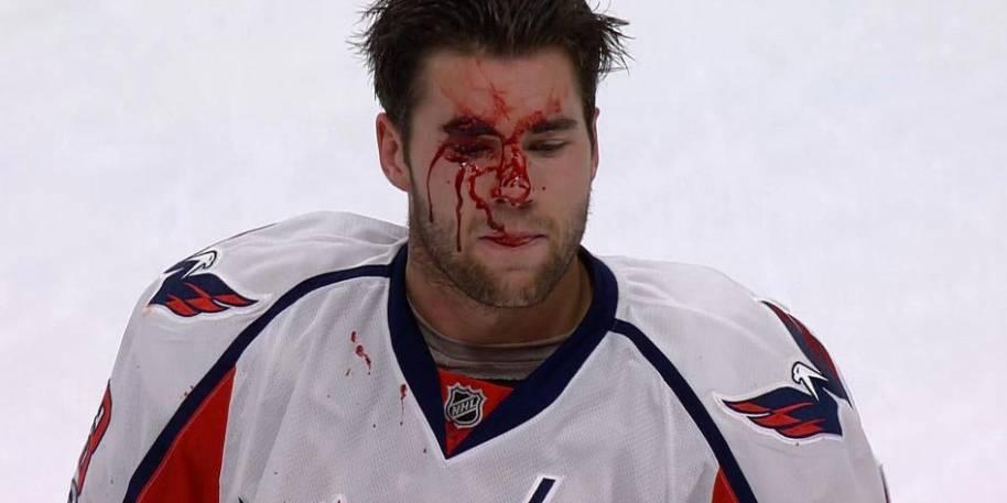 Tom Wilson Appeals 20 Game NHL Suspension